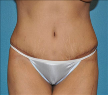 Liposuction After Photo by Steve Sample, MD, FACS; Arlington Heights, IL - Case 25486