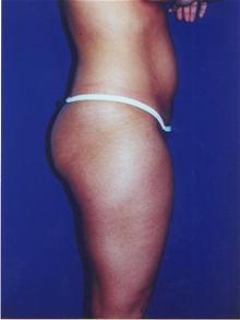 Breast Augmentation After Photo by Steve Sample, MD; Arlington Heights, IL - Case 25511