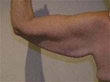 Arm Lift Before Photo by Steve Sample, MD, FACS; Arlington Heights, IL - Case 25727