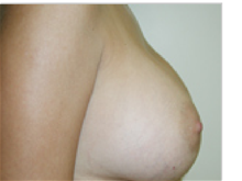 Breast Augmentation After Photo by Steve Sample, MD, FACS; Arlington Heights, IL - Case 26938