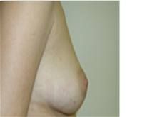 Breast Augmentation Before Photo by Steve Sample, MD, FACS; Arlington Heights, IL - Case 26938