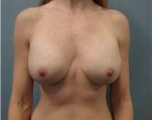 Breast Augmentation After Photo by Jacob Gerzenshtein, MD; Lakeland, FL - Case 29887