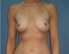 Breast Augmentation Before Photo by Jacob Gerzenshtein, MD; Lakeland, FL - Case 29887