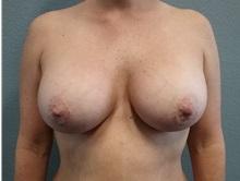 Breast Augmentation After Photo by Jacob Gerzenshtein, MD; Lakeland, FL - Case 29888