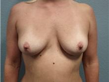 Breast Augmentation Before Photo by Jacob Gerzenshtein, MD; Lakeland, FL - Case 29888