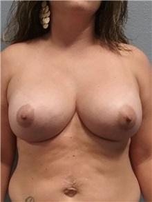Breast Augmentation After Photo by Jacob Gerzenshtein, MD; Lakeland, FL - Case 29889