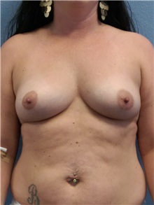 Breast Augmentation Before Photo by Jacob Gerzenshtein, MD; Lakeland, FL - Case 29889