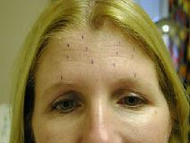 Botulinum Toxin Before Photo by Peter Pacik, MD; Manchester, NH - Case 3316