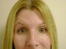Botulinum Toxin After Photo by Peter Pacik, MD; Manchester, NH - Case 3316