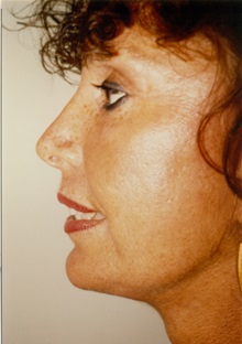 Facelift After Photo by Jon Harrell, DO, FACS; Weston, FL - Case 24180