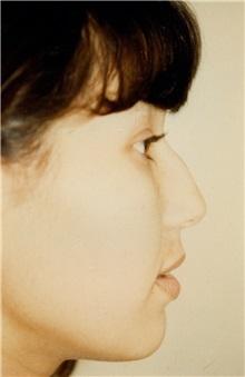Rhinoplasty Before Photo by Jon Harrell, DO, FACS; Weston, FL - Case 24184