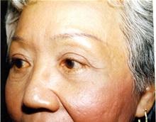 Eyelid Surgery After Photo by Jon Harrell, DO, FACS; Weston, FL - Case 24186