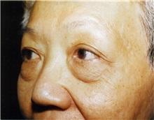 Eyelid Surgery Before Photo by Jon Harrell, DO, FACS; Weston, FL - Case 24186