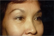 Eyelid Surgery After Photo by Jon Harrell, DO, FACS; Weston, FL - Case 24187