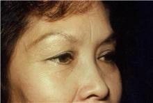 Eyelid Surgery Before Photo by Jon Harrell, DO, FACS; Weston, FL - Case 24187