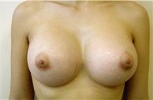 Breast Augmentation After Photo by Jon Harrell, DO, FACS; Weston, FL - Case 24188