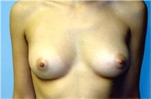 Breast Augmentation Before Photo by Jon Harrell, DO, FACS; Weston, FL - Case 24188
