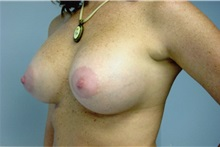 Breast Augmentation After Photo by Jon Harrell, DO, FACS; Weston, FL - Case 24189