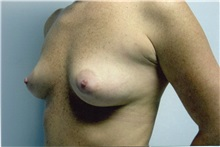 Breast Augmentation Before Photo by Jon Harrell, DO, FACS; Weston, FL - Case 24189