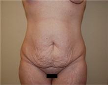 Tummy Tuck Before Photo by Jon Harrell, DO, FACS; Weston, FL - Case 24190
