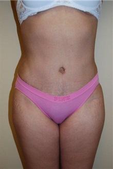 Tummy Tuck After Photo by Jon Harrell, DO, FACS; Weston, FL - Case 24191