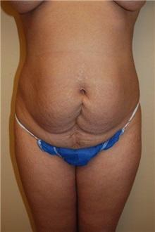 Tummy Tuck Before Photo by Jon Harrell, DO, FACS; Weston, FL - Case 24191