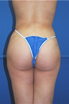 Liposuction After Photo by Jon Harrell, DO, FACS; Weston, FL - Case 24192