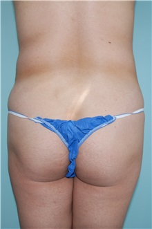 Liposuction Before Photo by Jon Harrell, DO, FACS; Weston, FL - Case 24192
