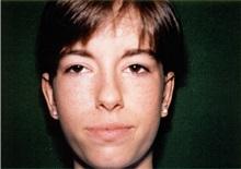 Ear Surgery After Photo by Jon Harrell, DO, FACS; Weston, FL - Case 24319