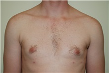Male Breast Reduction After Photo by Jon Harrell, DO, FACS; Weston, FL - Case 24320