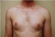 Male Breast Reduction Before Photo by Jon Harrell, DO, FACS; Weston, FL - Case 24320