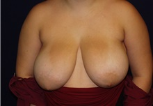 Breast Reduction Before Photo by Barry Douglas, MD, FACS; Garden City, NY - Case 43296