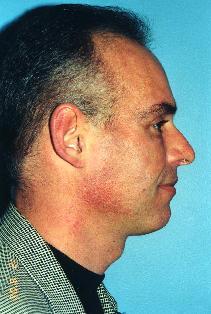 Dermal Fillers After Photo by Walter Sorokolit, MD; Fort Worth, TX - Case 7159
