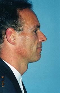 Dermal Fillers Before Photo by Walter Sorokolit, MD; Fort Worth, TX - Case 7159