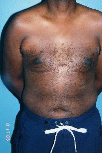Male Breast Reduction After Photo by Walter Sorokolit, MD; Fort Worth, TX - Case 7163