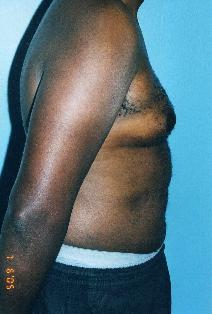 Male Breast Reduction Before Photo by Walter Sorokolit, MD; Fort Worth, TX - Case 7163