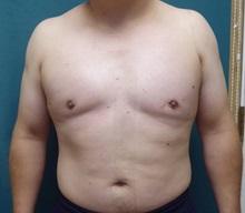 Male Breast Reduction After Photo by M. Vincent Makhlouf, MD, FACS; Des Plaines, IL - Case 31338