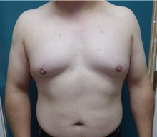 Male Breast Reduction Before Photo by M. Vincent Makhlouf, MD, FACS; Des Plaines, IL - Case 31338
