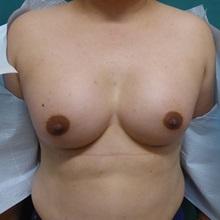 Breast Augmentation After Photo by M. Vincent Makhlouf, MD, FACS; Des Plaines, IL - Case 31366