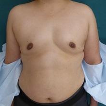 Breast Augmentation Before Photo by M. Vincent Makhlouf, MD, FACS; Des Plaines, IL - Case 31366