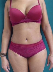 Tummy Tuck After Photo by M. Vincent Makhlouf, MD, FACS; Des Plaines, IL - Case 31368