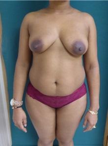 Tummy Tuck Before Photo by M. Vincent Makhlouf, MD, FACS; Des Plaines, IL - Case 31368