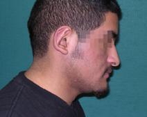 Ear Surgery After Photo by M. Vincent Makhlouf, MD, FACS; Des Plaines, IL - Case 9355
