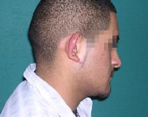 Ear Surgery Before Photo by M. Vincent Makhlouf, MD, FACS; Des Plaines, IL - Case 9355