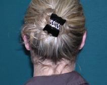 Ear Surgery After Photo by M. Vincent Makhlouf, MD, FACS; Des Plaines, IL - Case 9356