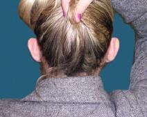 Ear Surgery Before Photo by M. Vincent Makhlouf, MD, FACS; Des Plaines, IL - Case 9356