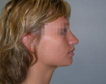 Rhinoplasty Before Photo by M. Vincent Makhlouf, MD, FACS; Des Plaines, IL - Case 9359