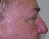 Eyelid Surgery After Photo by M. Vincent Makhlouf, MD, FACS; Des Plaines, IL - Case 9360