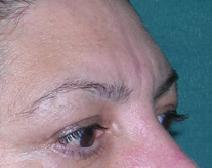 Eyelid Surgery After Photo by M. Vincent Makhlouf, MD, FACS; Des Plaines, IL - Case 9361