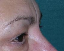 Eyelid Surgery Before Photo by M. Vincent Makhlouf, MD, FACS; Des Plaines, IL - Case 9361